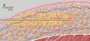 Ultraschallenergie