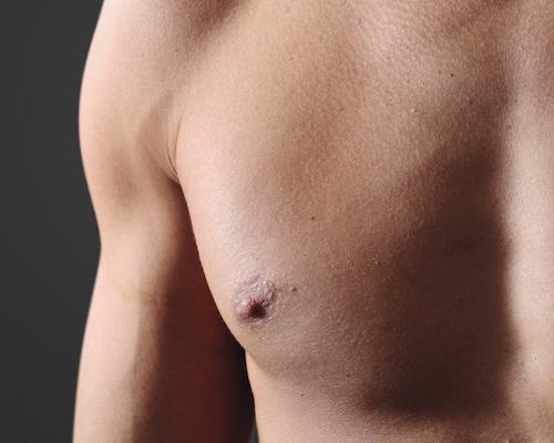 Männer Brust