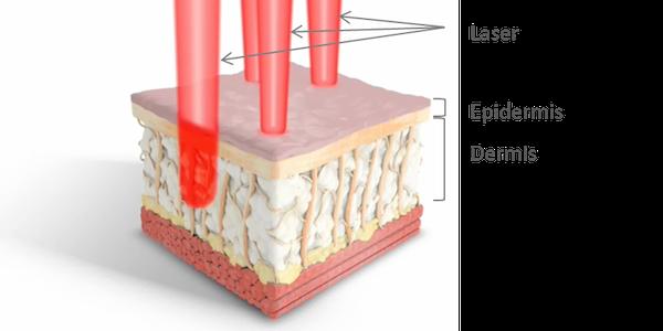Hautlaser Epidermis Dermis